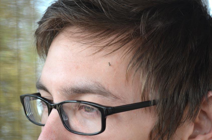 ant on my head
